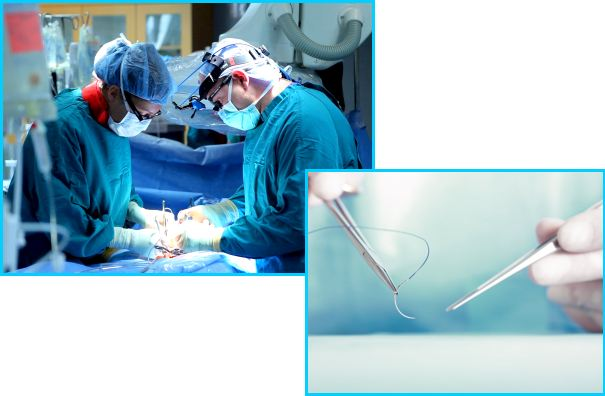 surgerySuture